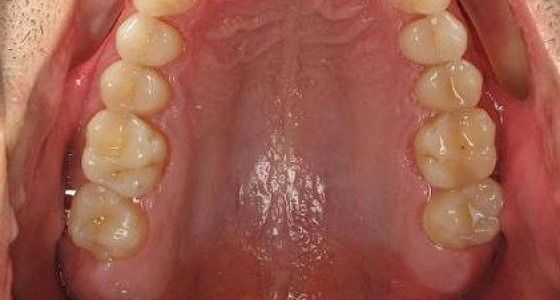 Invisalign pictures after treatment progress