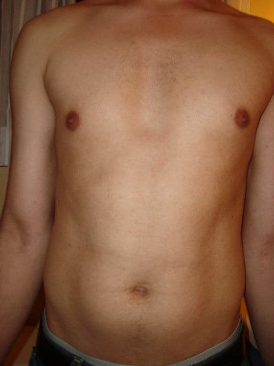 IPL Results after 2 treatments