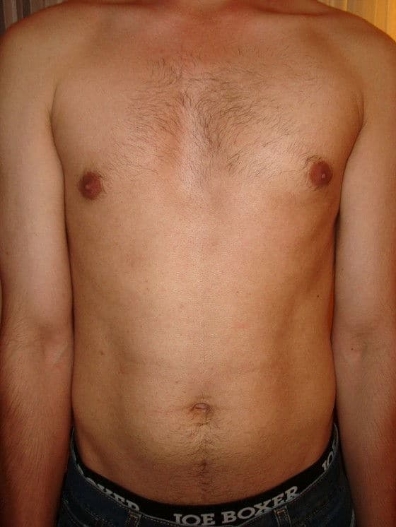 Before VISS IPL treatment hairy torso picture