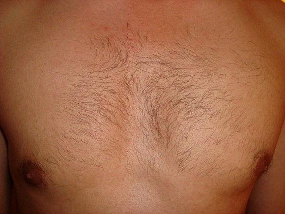 VISS IPL treatment on mens hairy chest
