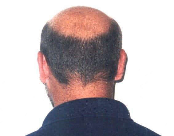 balding horseshoe look