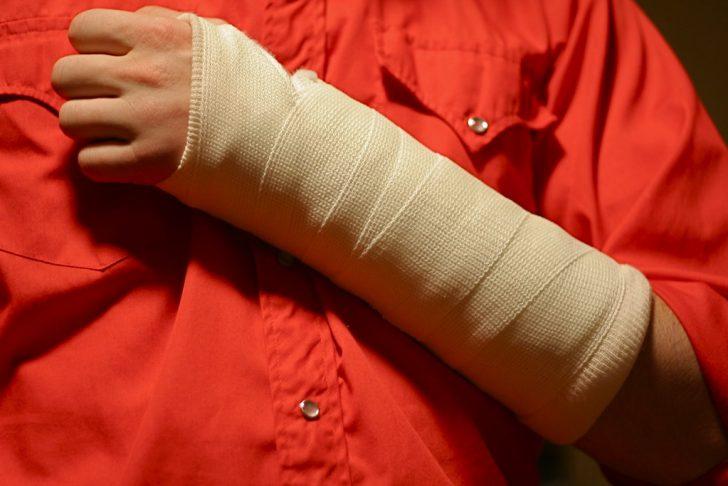 person with broken arm