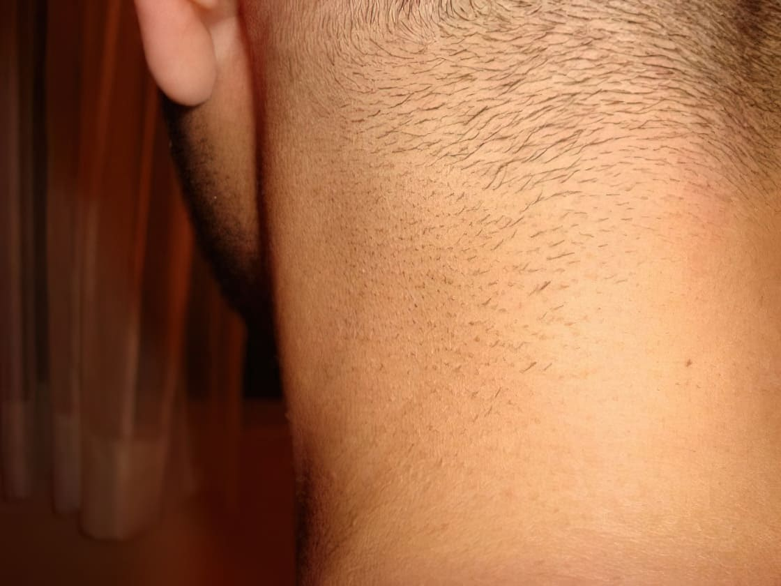 After Picture VISS IPL 2nd Treatment Neck e1317333707999 upscaled