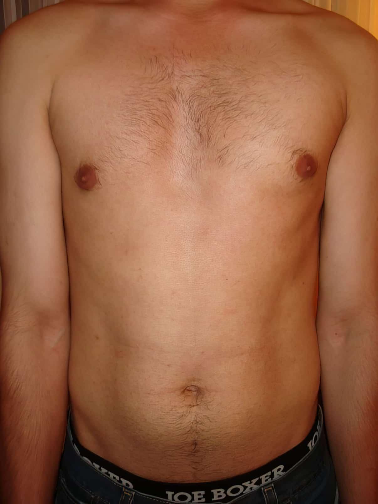 Before VISS Beauty IPL Torso Treatment.jpg upscaled