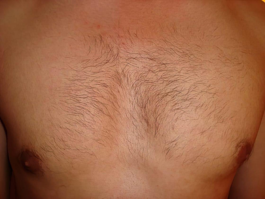 Before Viss Beauty IPL Chest Treatment.jpg e1317331429303 upscaled